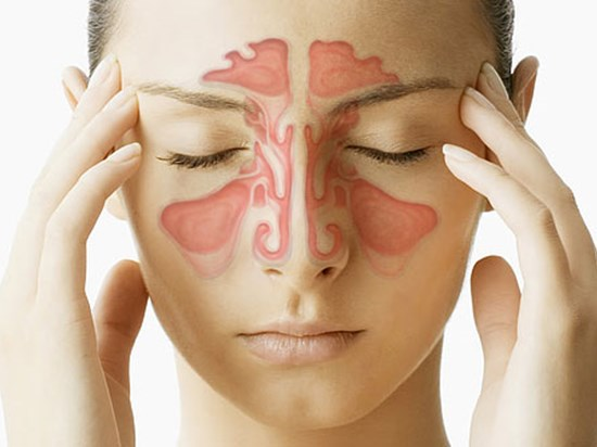 Chronic Sinusitis